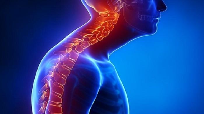اصلاح قوس پشت مهره های گردن ناشی از نحوه نشستن و ایستادن اشتباه