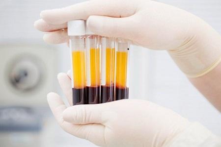 تزریق پلاسمای غنی از پلاکت (پی آر پی)