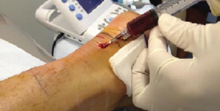تزریق پلاسمای غنی از پلاکت (PRP)