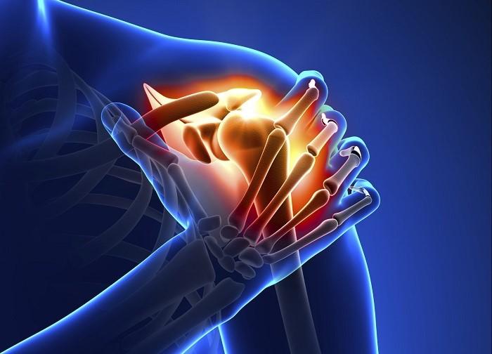 درمان آرتروز شانه ناشی از سایش غضروف محافظ اطراف استخوان شانه