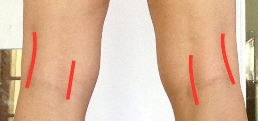 درمان زانو و پای پرانتزی با ورزش و حرکات اصلاحی